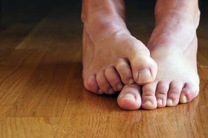 Feet Sweating 76